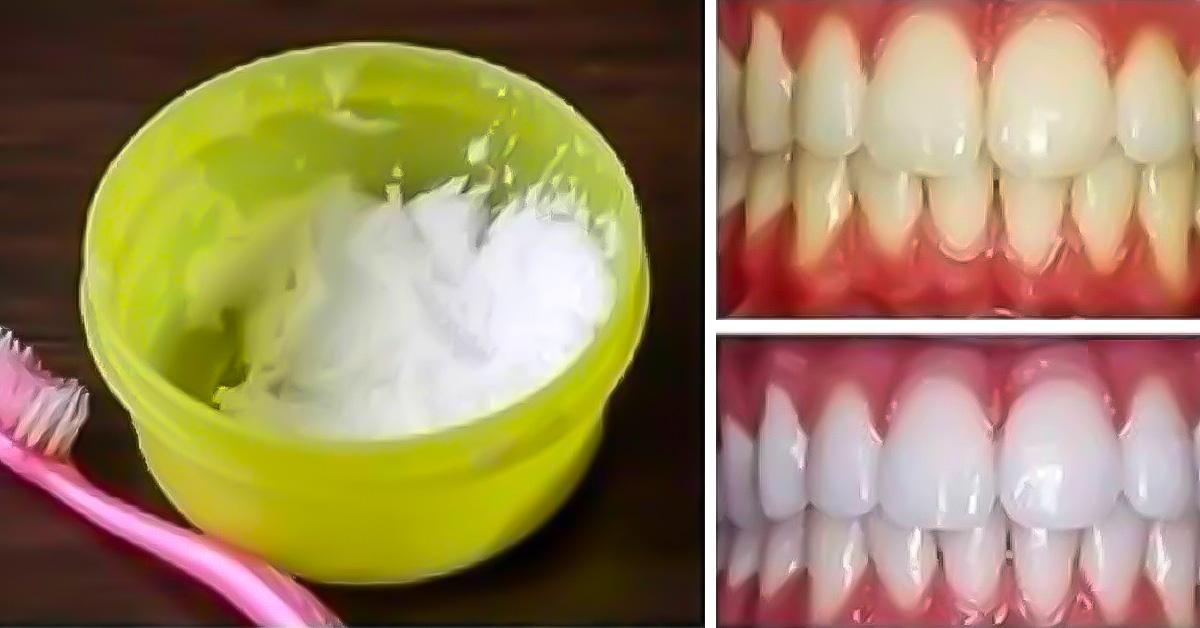 C mo blanquear los dientes en casa - Como blanquear los dientes en casa ...