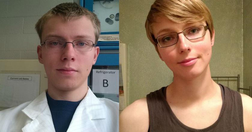 Triacana antes y despues de adelgazar